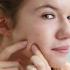 Nặn mụn không loại bỏ hoàn toàn mụn cám, gây đau rát cho da