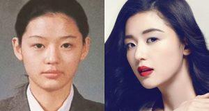 """Hình ảnh sau khi nâng mũi của """"mợ chảnh"""" Jeon Ji Hyun"""