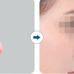 Những biến chứng sau phẫu thuật nâng mũi