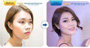 Nâng mũi giúp bạn sở hữu gương mặt hài hòa cân đối hơn, vậy thì tại sao bạn còn thắc mắc có nên nâng mũi không nữa?