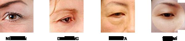Phẫu thuật lấy mỡ mí mắt và cắt da thừa mí trên222