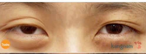 Phẫu thuật lấy mỡ mí mắt và cắt da thừa mí trên111