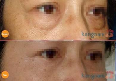 Phẫu thuật lấy mỡ mí mắt và cắt da thừa mí trên678