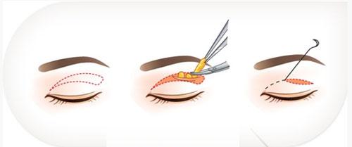 Phẫu thuật lấy mỡ mí mắt và cắt da thừa mí trên4 46