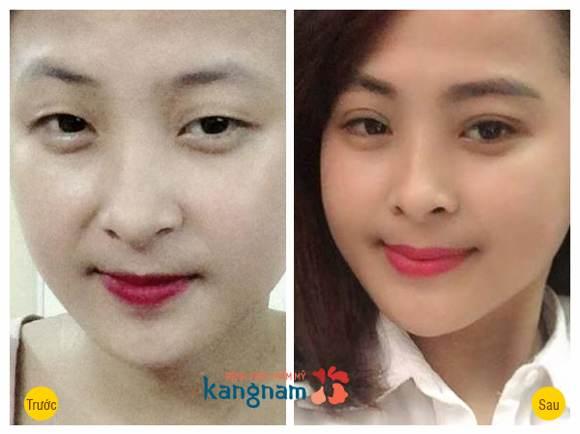 thẩm mỹ mắt Hàn Quốc222