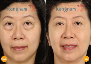 thẩm mỹ mắt Hàn Quốc9