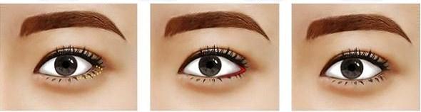 thẩm mỹ mắt Hàn Quốc7800
