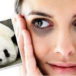 Chia sẻ cách xóa thâm quầng mắt hiệu quả bằng dầu dừa