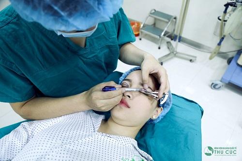 Với phẫu thuật cắt mí mắt, lượng mỡ thừa sẽ nhanh chóng được lấy đi một cách rất dễ dàng