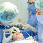 Những điều cần biết khi nâng mũi không phẫu thuật