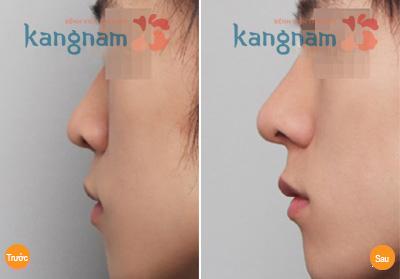 Nâng mũi không phẫu thuật 4