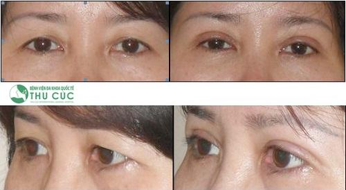 Phẫu thuật lấy mỡ mí mắt và cắt da thừa thường được hoàn thành rất nhanh chóng. Chỉ khoảng 5-7 ngày sau phẫu thuật là mắt sẽ hết sưng và lên dáng đẹp như mong muốn.