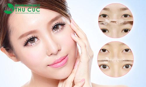 Khách hàng sau khi tạo mí mắt tại Thu Cúc (Lưu ý, kết quả phẫu thuật thẩm mỹ còn phụ thuộc vào cơ địa của mỗi người.)