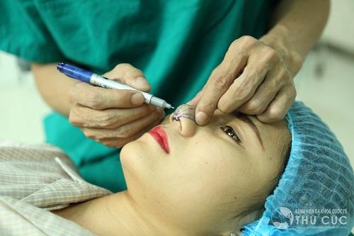 Thu gọn đầu mũi ở Bệnh viện Thu Cúc được nhiều người tin tưởng và lựa chọn