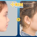 Cắt chỉ sau nâng mũi có đau không?