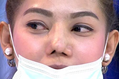 Mũi gãy do tai nạn khiến chị em trở nên kém sắc hơn