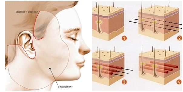 Nâng mũi bằng chỉ sinh học