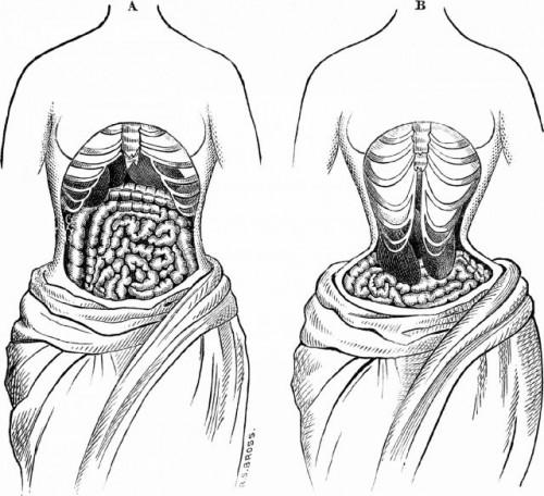 nhung-rui-ro-khi-nang-nguc-giam-eo-voi-corset 5