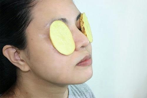 Cách xóa tan bọng mỡ mắt với khoai tây