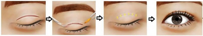 Cách làm trẻ hóa đôi mắt5567