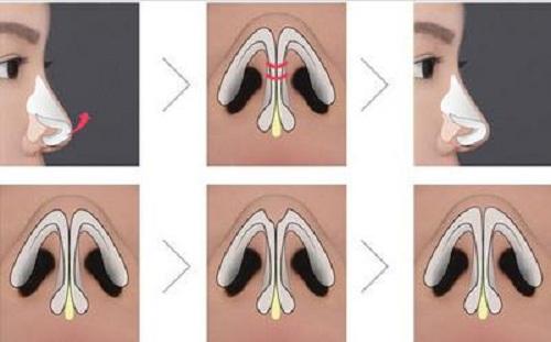 Thu gọn đầu mũi có để lại sẹo không