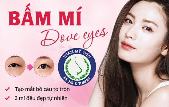 Bấm mí hay nhấn mí mắt Hàn Quốc