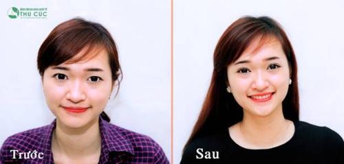 Nhiều chị em xinh đẹp và thành công hơn sau khi bấm mí Hàn Quốc
