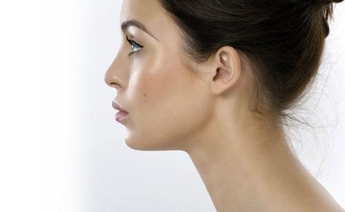 Nâng mũi Thu Cúc - giải pháp tốt cho những người có dáng mũi tẹt