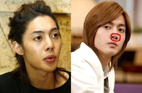 Sự thay đổi trên dáng mũi của Kim Huyn Joong