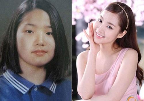 """Park Min Young được mệnh danh là """"người đẹp dao kéo"""". Nữ diễn viên chính City Hunter từng thẳng thắn công nhận hành trình """"dao kéo"""" của mình. Vốn sở hữu nhan sắc khá mờ nhạt nhờ gọt hàm thon gọn, nâng mũi cao và xẻ 2 mí mắt, cô đã có được hình ảnh cuốn hút như hiện tại."""