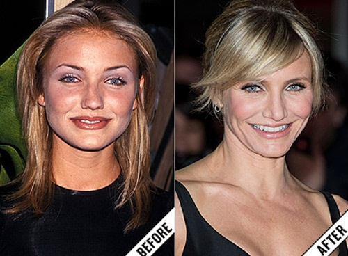 Kiều nữ hollywood nâng mũi là ai? | Công An Xã Kim Nỗ