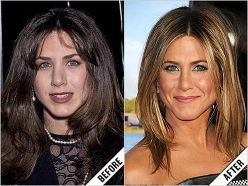 """Jennifer Aniston là một trong những sao Hollywood thẳng thắn thừa nhận việc sửa mũi. Chiếc mũi hiện tại của cô nàng hoàn toàn tự nhiên hài hòa với khuôn mặt khiến các fan hâm mộ càng thêm """"cuồng"""""""