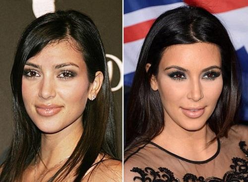 """Nói đến sao Hollywood đã từng nâng mũi không thể không kể đến Kim """"siêu vòng 3"""". Có thể thấy với chiếc mũi mới thanh tú, gương mặt của Kim Kardashian đã trở nên hoàn hảo hơn rất nhiều"""
