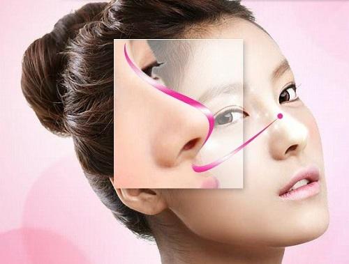 Nâng mũi S line - bước phát triển vượt bậc của nền thẩm mỹ hiện đại