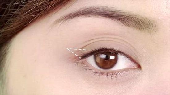 Nguyên nhân mắt 3 mí