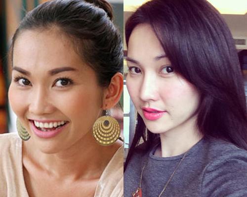 Kim Hiền cũng là một trong những nữ diễn viên dính nghi án phẫu thuật nâng mũi. Chiếc mũi của cô cao và thanh tú hơn hẳn so với trước đây đã giúp cho gương mặt Kim Hiền trở nên sang chảnh và đẹp từ mọi góc nhìn
