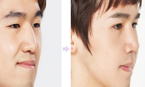 Với phương pháp chỉnh hình mũi hiện đại, việc sở hữu dáng mũi thanh tú như các diễn viên điện ảnh đã không còn là mơ ước xa vời dành cho bạn