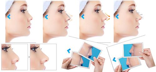 Mũi thon nhỏ là chi tiết quan trọng đối với nhan sắc của phái nữ