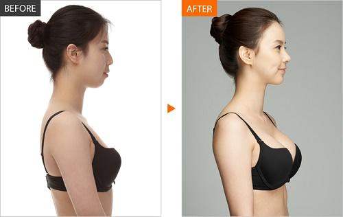 Sau khi nâng ngực nội soi bạn sẽ trở nên hoàn toàn khác biệt