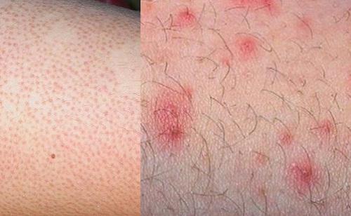 Viêm nang lông là nỗi ám ảnh đối với nhiều người