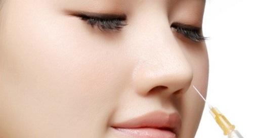 Nâng mũi bằng tiêm chất làm đầy - phương pháp được giới trẻ vô cùng quan tâm