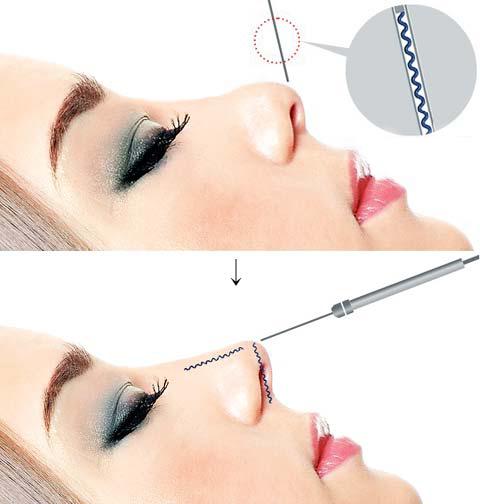 chỉnh sửa mũi hếch 1