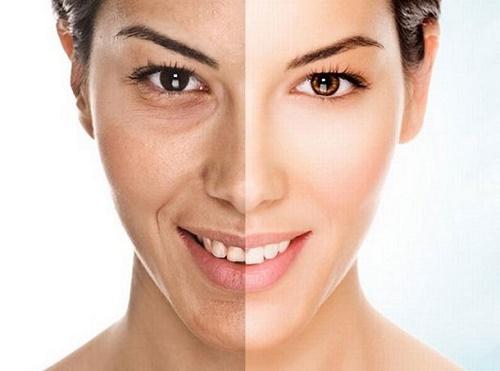 Sau giảm cân, làn da không còn được căng mịn và săn chắc