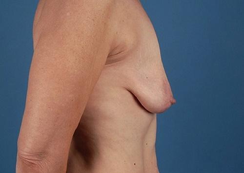 Ngực chảy xệ là nỗi ám ảnh của bất kỳ phụ nữ nào