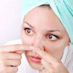 Bị mụn sau khi nâng mũi thì làm thế nào?