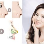 Nâng mũi bọc sụn Hàn Quốc an toàn, mũi đẹp hoàn hảo