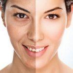 Làn da sẽ biến đổi thế nào sau quá trình giảm cân?