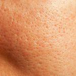 Tổng hợp các bí quyết giúp se nhỏ lỗ chân lông an toàn mà cực kỳ hiệu quả
