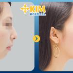 Nâng mũi sau 10 năm có cần phải làm lại không?