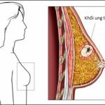Chế độ ăn uống ngăn ngừa ung thư vú